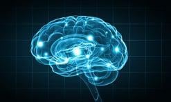 epilepsy brain abnormalities